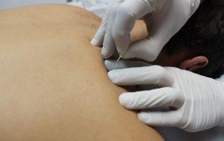 tecnica puncion seca fisioterapia barcelona